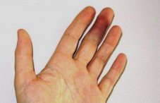 Ушиб пальца руки - симптом и лечение как лечить ушиб фаланги пальца - -
