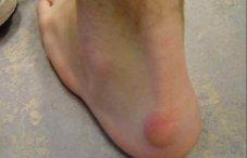 Нарост на пятке сзади: фото шишки на голеностопе