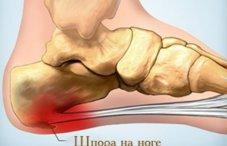 Как лечить артроз стопы и голеностопного сустава