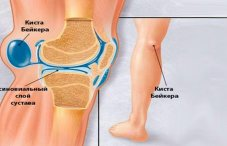 Фольга лечит суставы протез тазобедренного сустава стоимость