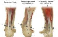 Методы лечения артроза поразившего большой палец ноги