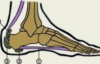Тактика лечения артрита голеностопного сустава препараты и народные средства