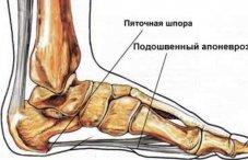 Болят ноги в области голени как лечить