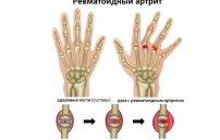 народные средства для суставов остеопороз