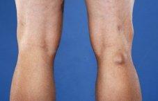 Шишка под коленом сзади: фото коленной чашечки, лечение