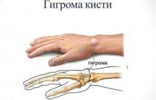 Шишка на суставе кисти ударение с.м.бубновский оздоровление суставов и позвоночника