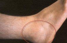 Отек голеностопного сустава (болит и опух голеностоп): фото, причины, лечение боли