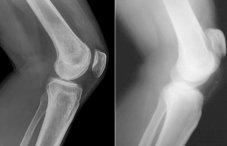 Рентген здорового тазобедренного сустава костный нарост на тазобедренном суставе