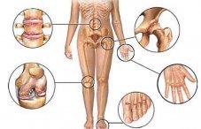 Артроз голеностопного сустава симптомы и лечение