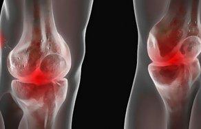 Лечение и симптомы артроза 1 степени коленного сустава