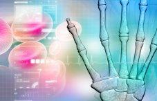 Ревматоидный артрит: прогноз для жизни, обострения