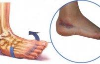 Артрит голеностопного сустава симптомы и лечение фото причины