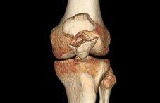 Хруст в тазобедренном суставе во время беременности болезнь гоффа коленного сустава лечение упражнения