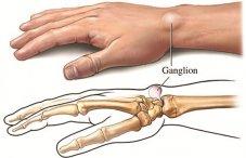 Болит рука в запястье к какому врачу идти авто управляемый термостат bmv