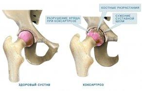 Боль в суставах голеностопа причины и лечение