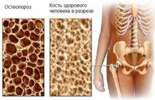 Артрит тазобедренного сустава симптомы и лечение у пожилых