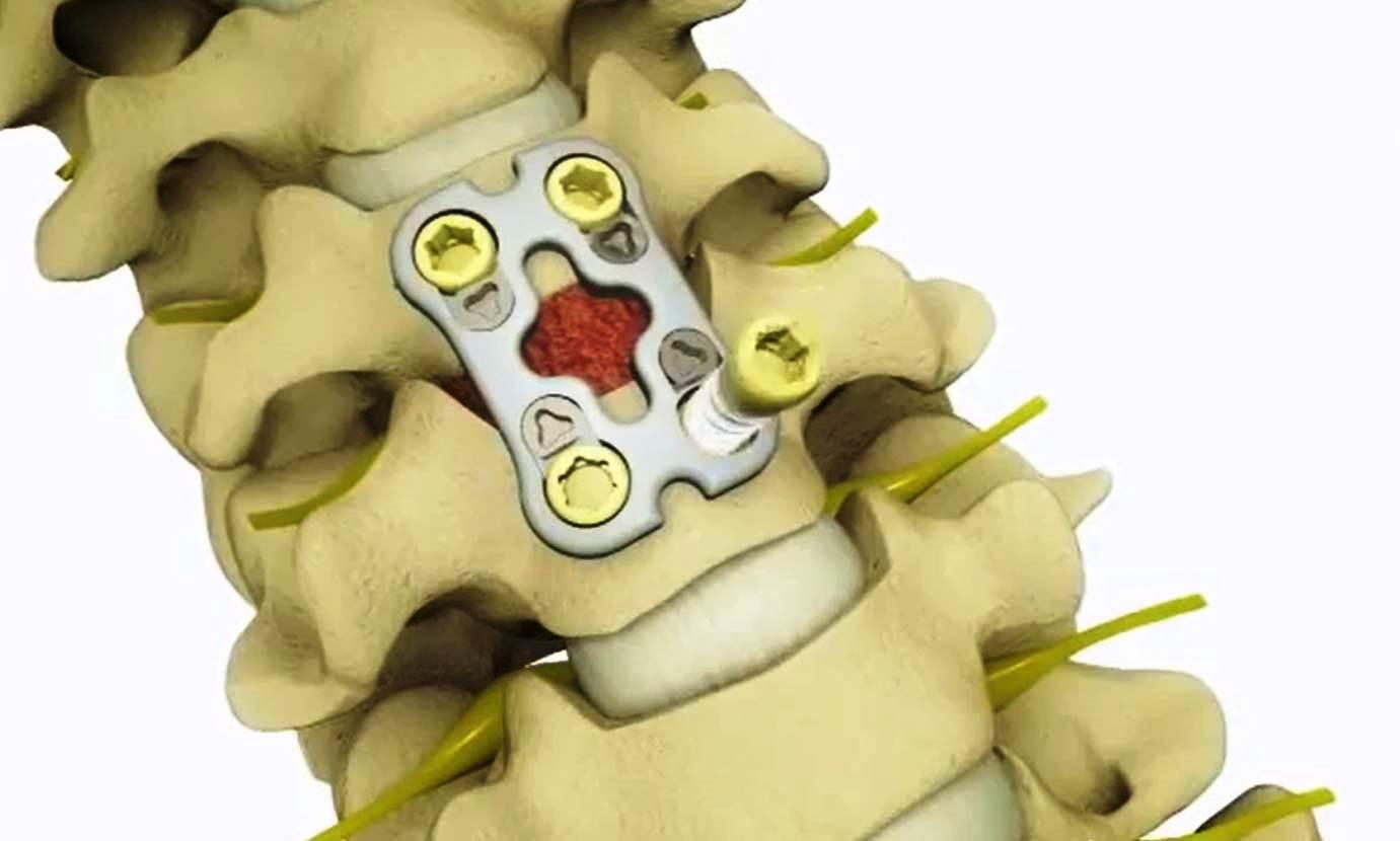 Способы лечения межпозвоночную грыжу шейного отдела позвоночника фото