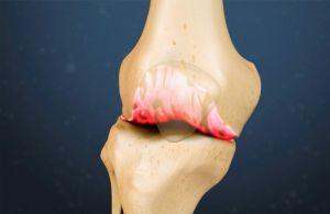 Шипы в коленях