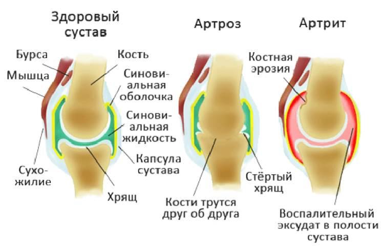 Что такое артрит и что такое артроз фото
