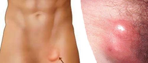 Причины роста шишки шарика на грудной клетке или ребре