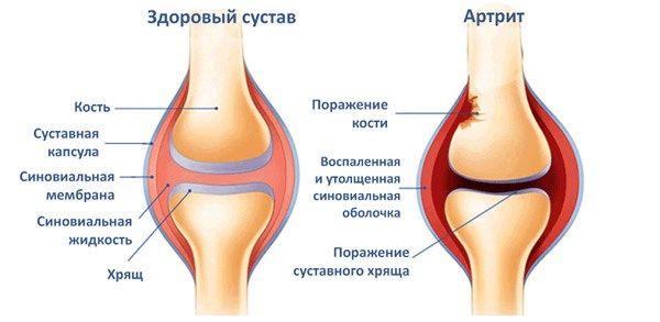 Киста латерального мениска коленного сустава лечение
