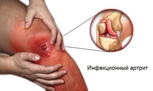 Почему возникает артрит после ангины причины осложнений, тактика лечения и профилактики