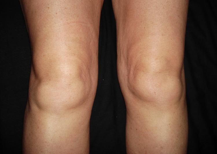 Артрит в коленном суставе фото фото