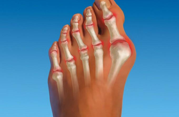 Как выглядит артрит пальцев ног фото