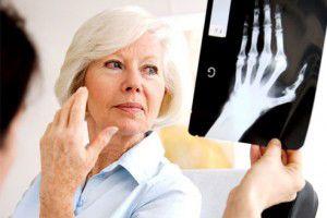 ревматоидный артрит группа инвалидности