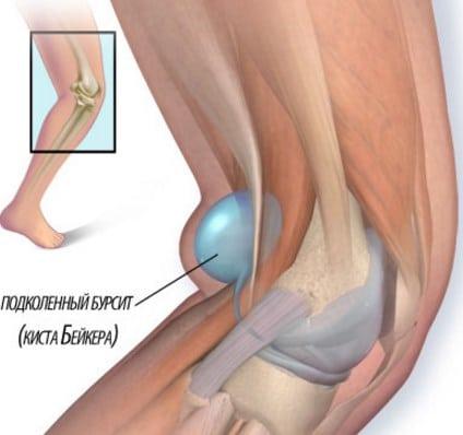 Лечение артроза плечевого сустава народными методами