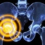 Симптомы воспаления тазобедренного сустава