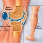 Боль под коленом и шишка
