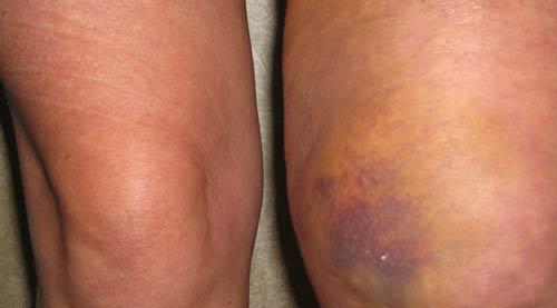 Ушиб колена при падении: лечение, симптомы, фото