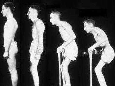 болезнь бехтерева фото больных
