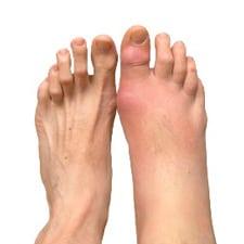 нет сустава на большом пальце ноги