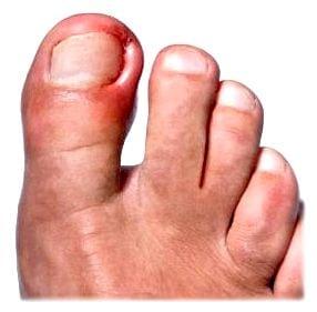 Воспалился большой палец на ноге у ногтя