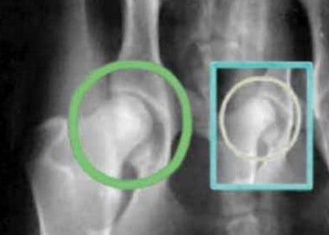 врожденная дисплазия плечевого сустава