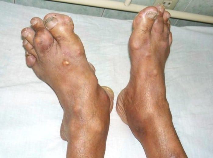 Тофусы при подагре: лечение, удаление, описание (фото)