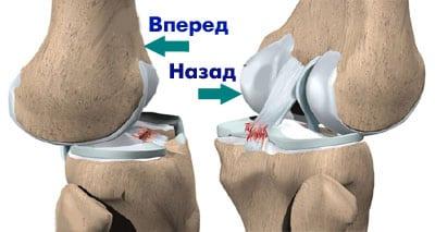 Разрыв связок коленного сустава: лечение, симптомы, фото