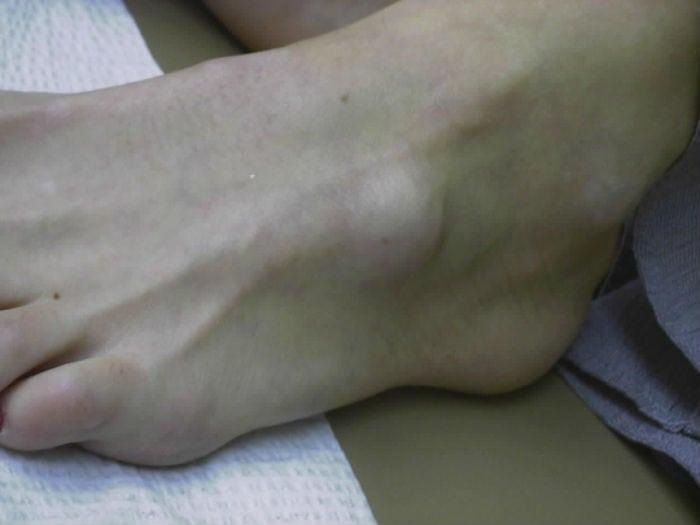 гигрома на ноге фото у ребенка