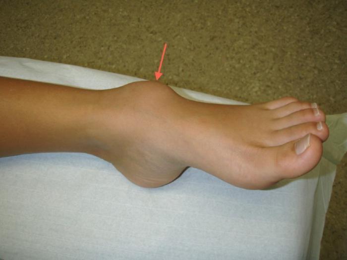 Гигрома стопы (сухожилий голеностопного сустава): фото, лечение