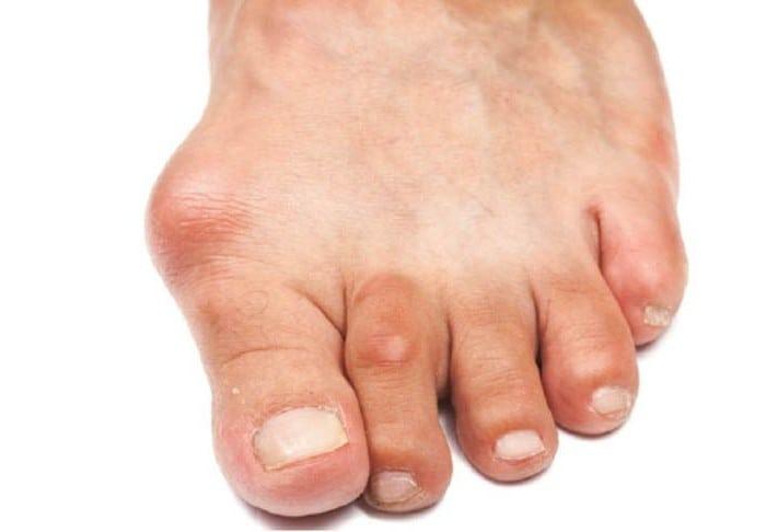 большой палец на ноге сустав
