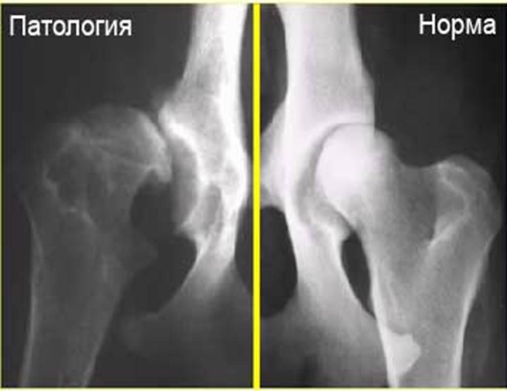 диспластический коксартроз тазобедренных суставов у