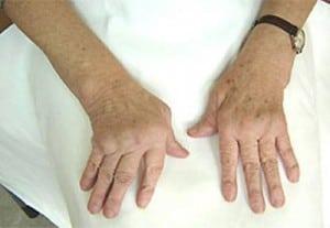 Лечение остеоартроза кистей рук и суставов пальцев