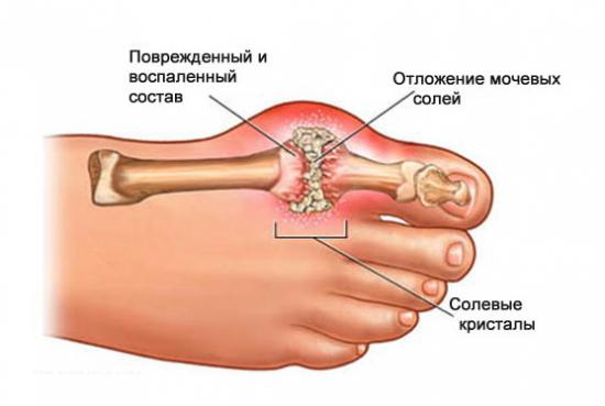 Приступ подагры: лечение (что делать и как снять)