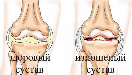 Артроз: симптомы, причины (признаки), лечение суставов