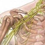 защемление нерва в плече