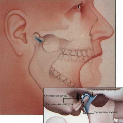 Воспаление челюстного сустава: симптомы, лечение