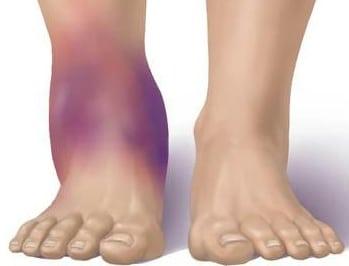 Повреждения связок голеностопного сустава: лечение травм