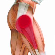 Трохантерит тазобедренного сустава симптомы и лечение диагностика